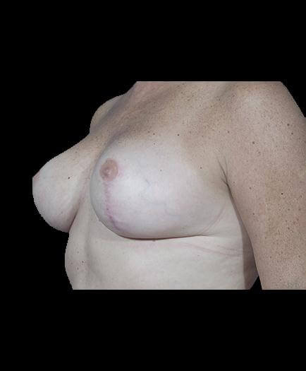 Reduction Mammoplasty After Image