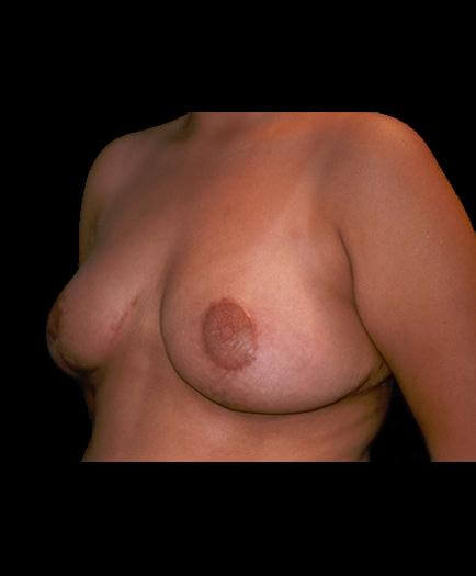 Virginia Reduction Mammoplasty After Image