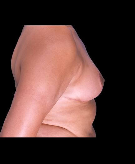 Reduction Mammoplasty Surgery After Image