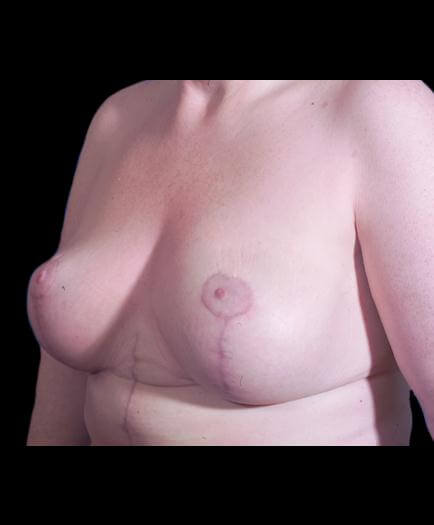After Breast Lift Surgery