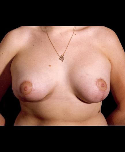 Breast Lift Surgery After Image