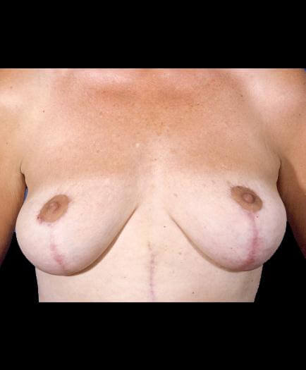 Breast Lift Surgery After Picture