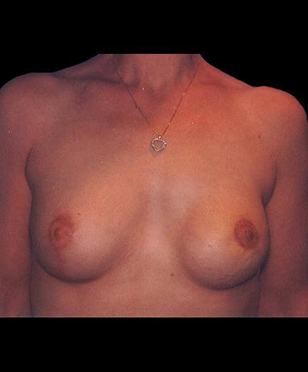 Breast Reconstruction After Photo