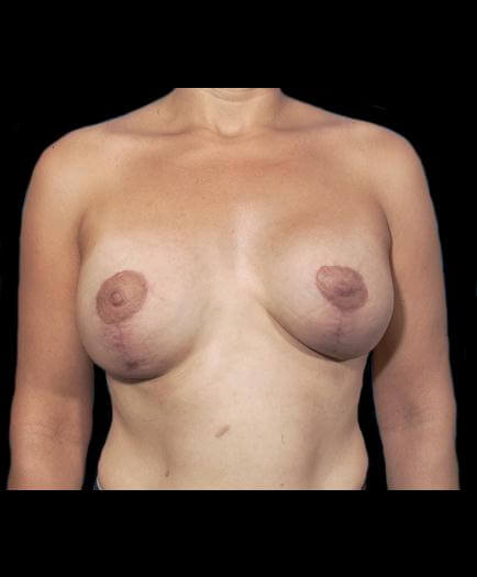 Breast Asymmetry Front View After
