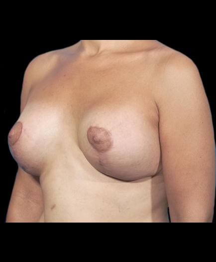 Breast Asymmetry Quarter View After