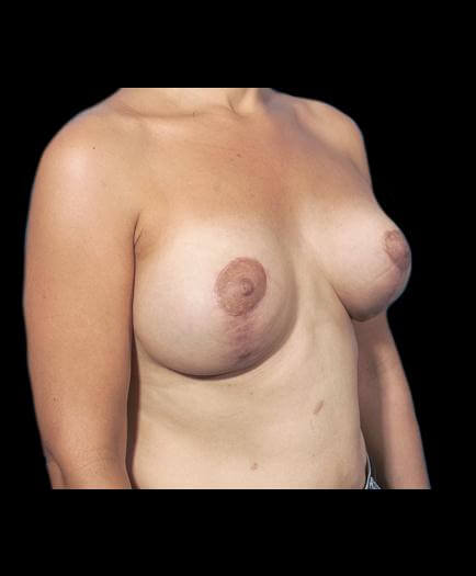 Breast Asymmetry After
