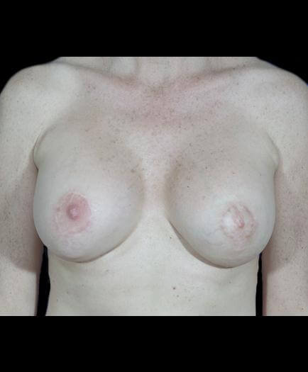 Breast Asymmetry Surgery Front View After