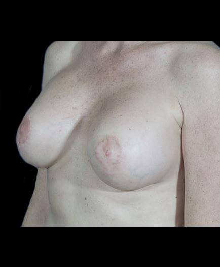 Breast Asymmetry Surgery Quarter View After