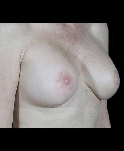 Breast Asymmetry Surgery After