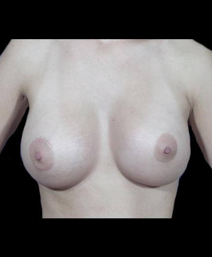Breast Asymmetry Correction Front View After