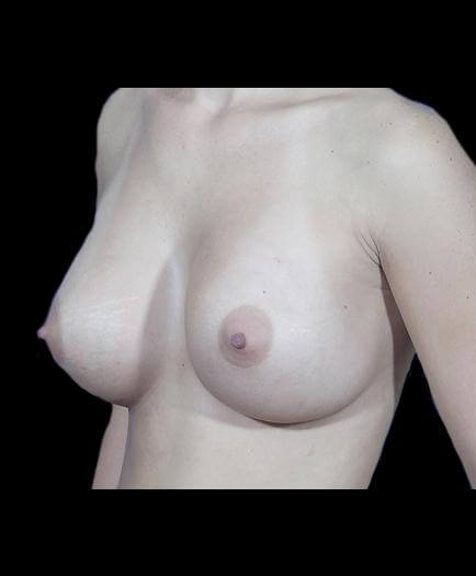 Breast Asymmetry Correction Quarter View After