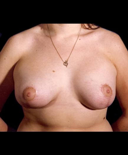 Asymmetrical Breast Front View After