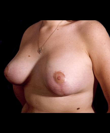 Asymmetrical Breast After