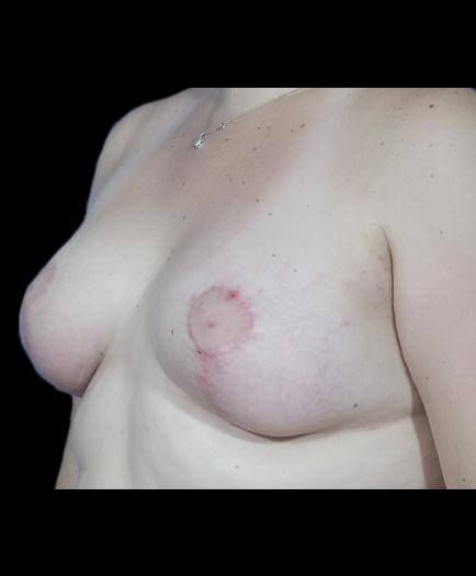Asymmetrical Breast Surgery Quarter View After