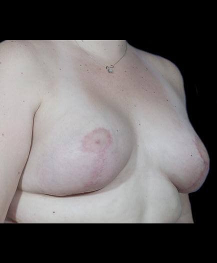 Asymmetrical Breast Surgery After