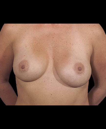 Asymmetrical Breast Correction Front View After
