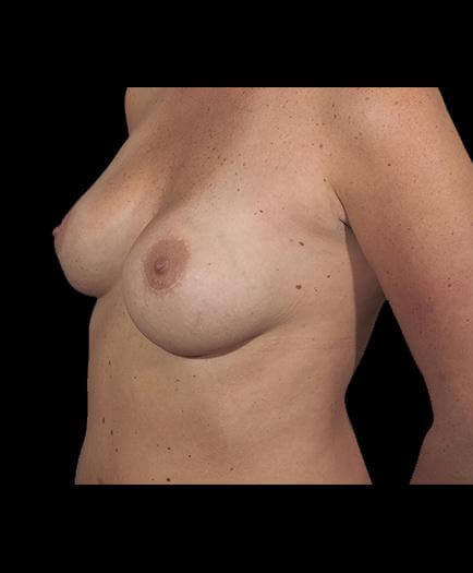 Asymmetrical Breast Correction Quarter View After