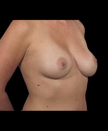 Asymmetrical Breast Correction After