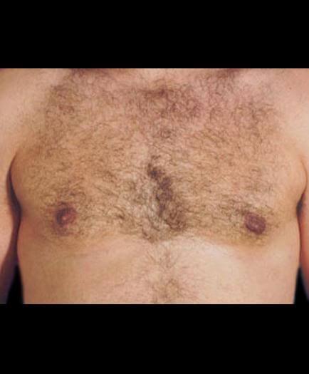 Gynecomastia Surgery After