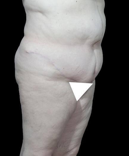Abdominoplasty Procedure After