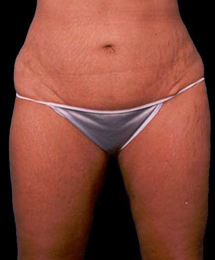 Female Tummy Tuck After