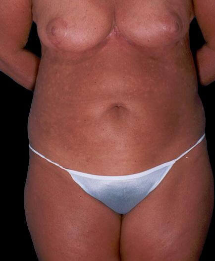Tummy Tuck For Women After