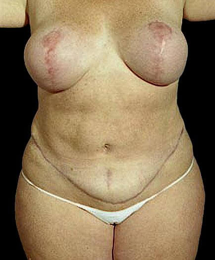 Women's Tummy Tuck Front View After