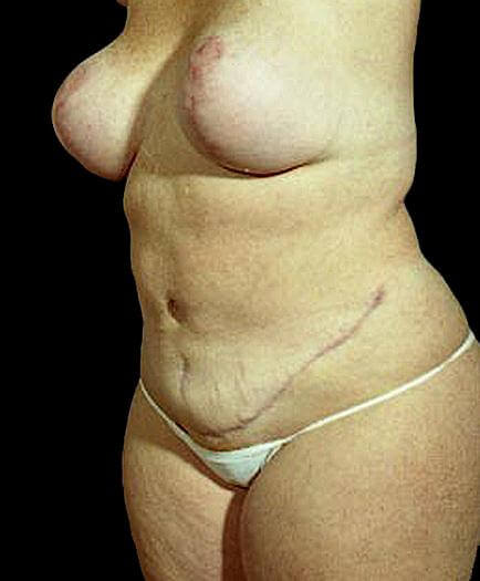 Women's Tummy Tuck Quarter View After