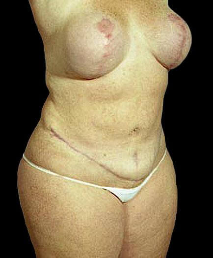 Women's Tummy Tuck After