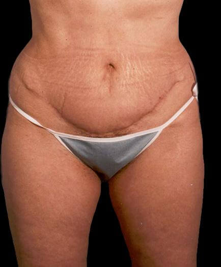Body Contouring & Lipo After