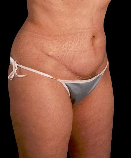 Lipo & Body Contouring After
