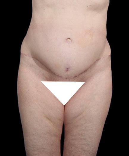 Abdominal Lipo & Tightening Front View After