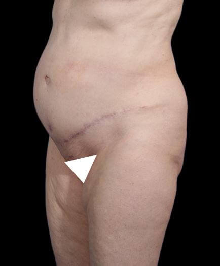 Abdominal Lipo & Tightening Quarter View After