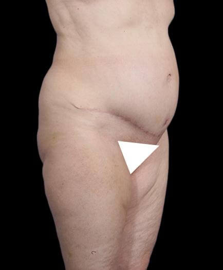 Abdominal Lipo & Tightening After