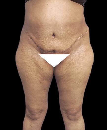 Abdominoplasty & Lipo Front View After