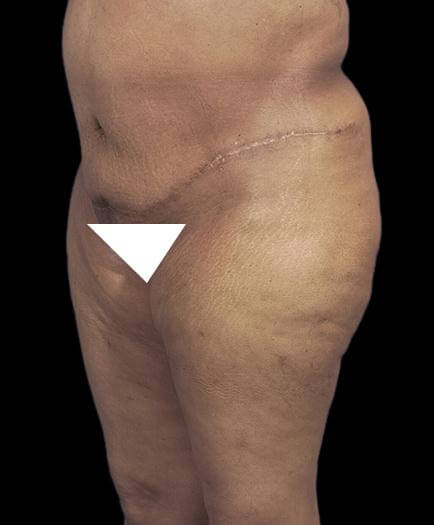 Abdominoplasty & Lipo Quarter View After