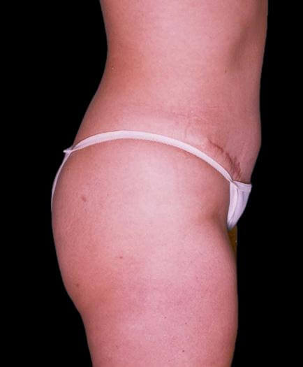 Abdominoplasty & Lipo Side View After