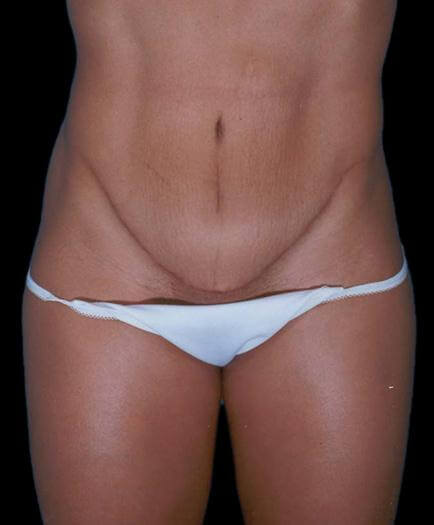 Women's Tummy Tuck Surgery After