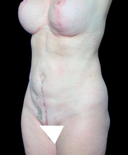 After Abdominoplasty Surgery