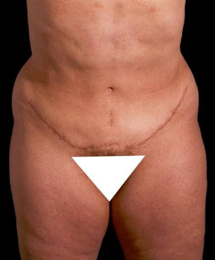 After Abdominoplasty Surgery Front View