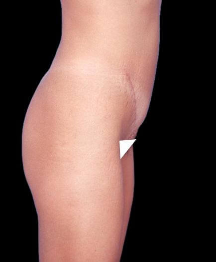 After Tummy Tuck Treatment