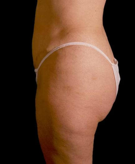 Stomach Lipo & Tummy Tuck Side View After