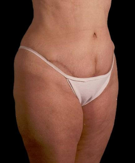 Stomach Lipo & Tummy Tuck Quarter View After
