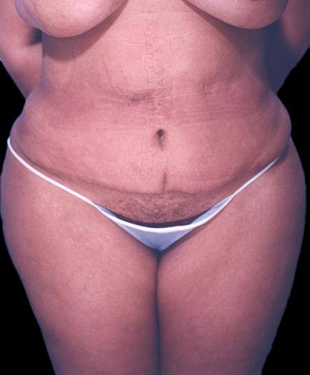 Female Tummy Tuck Surgery After
