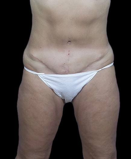 Stomach Abdominoplasty After