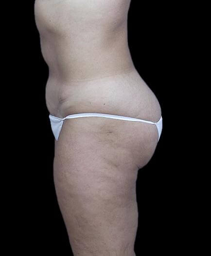 Stomach Abdominoplasty Side View After