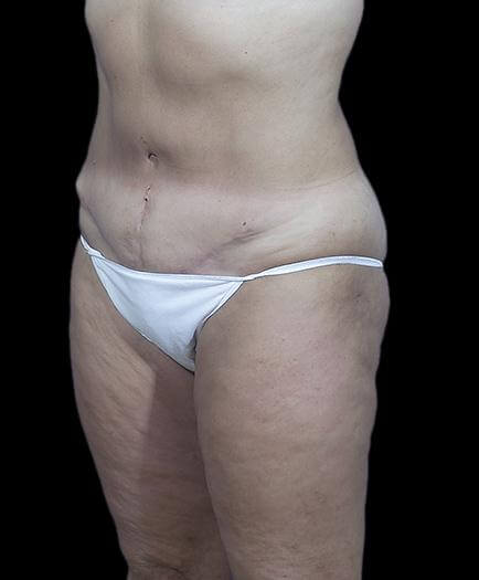 Stomach Abdominoplasty Quarter View After