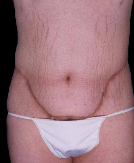 Male Abdominoplasty After