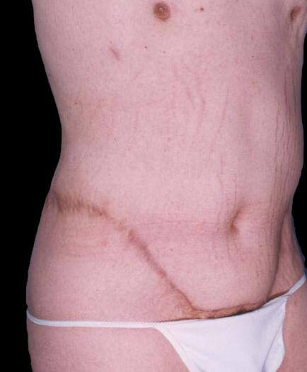 Male Abdominoplasty Quarter View After