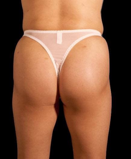Buttock Augmentation Back View Before